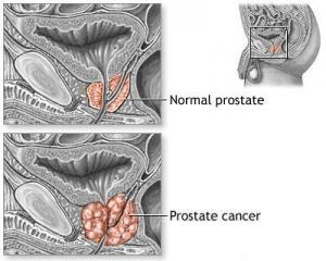 pterostilbene prostate